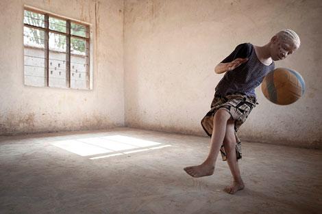 ANA-PALACIOS--ALBINOS-EN-TANZANIA-revistaojosrojos
